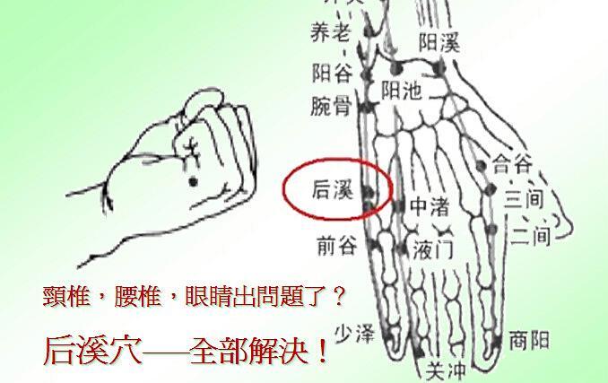颈肩腰椎病驼背就用后溪穴 还可以矫正视力