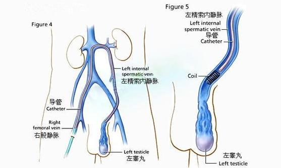 梗阻性无精子症 中医药大学博士生研究生刘磊