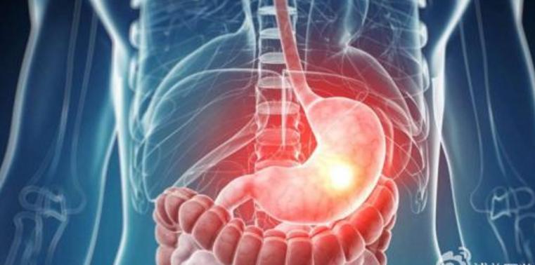 春节在即 注意饮食习惯 防止胃癌病从口入