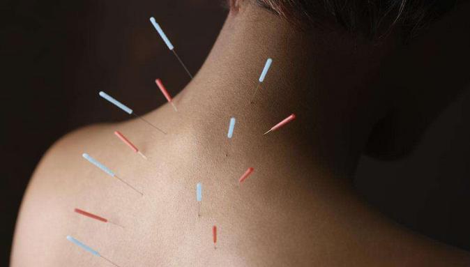 针灸疗法优点 腧穴加以配伍穴位应用的方法