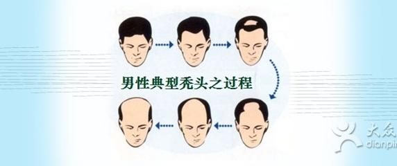 当心脱发关联疾 经常掉头发是五大致病前兆