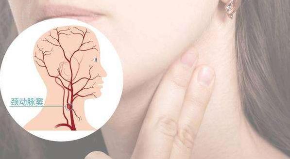 死亡之吻与颈动脉窦综合征 按摩防心律失常